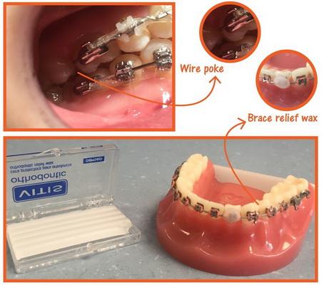 2 - رویش دندانهای شیری در کودکان