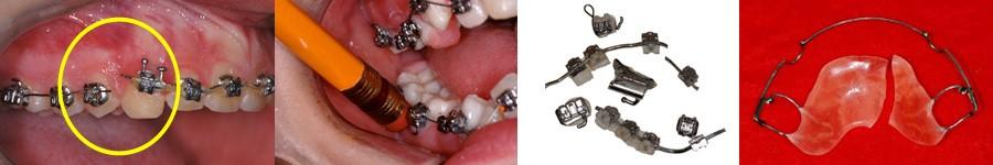 3 - رویش دندانهای شیری در کودکان