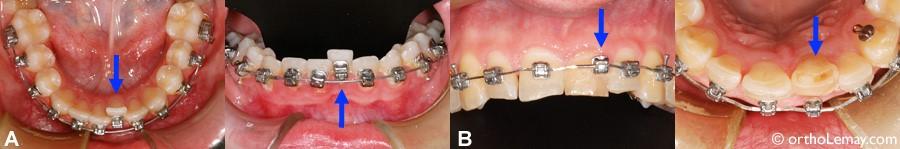 6 - رویش دندانهای شیری در کودکان