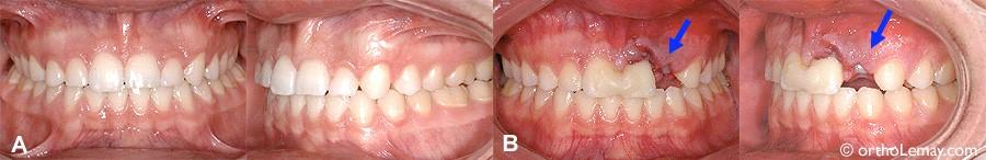 8 - رویش دندانهای شیری در کودکان
