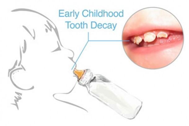 0 10 - پوسیدگی دندان نوزاد با شیشه شیر