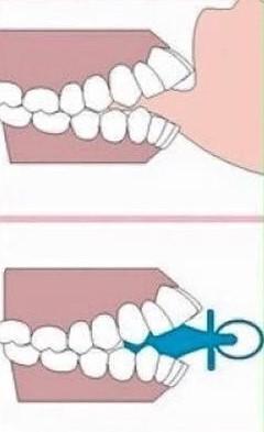 2 13 - تأثیر منفی مکیدن انگشت و پستانک روی دندان کودکان