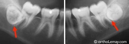 3 11 - دندانهای عقل، ارتودنتیست و دندانپزشک