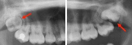 دندان عقل و ارتودنسی
