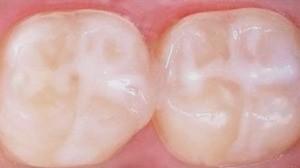 4 9 - سوالات والدین درباره سلامت دهان و دندان کودک
