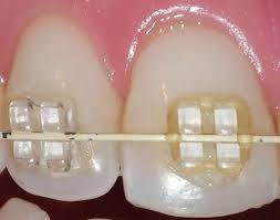 5 6 - مقایسه براکت فلزی با براکت شفاف