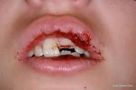 6 6 - سوالات والدین درباره سلامت دهان و دندان کودک