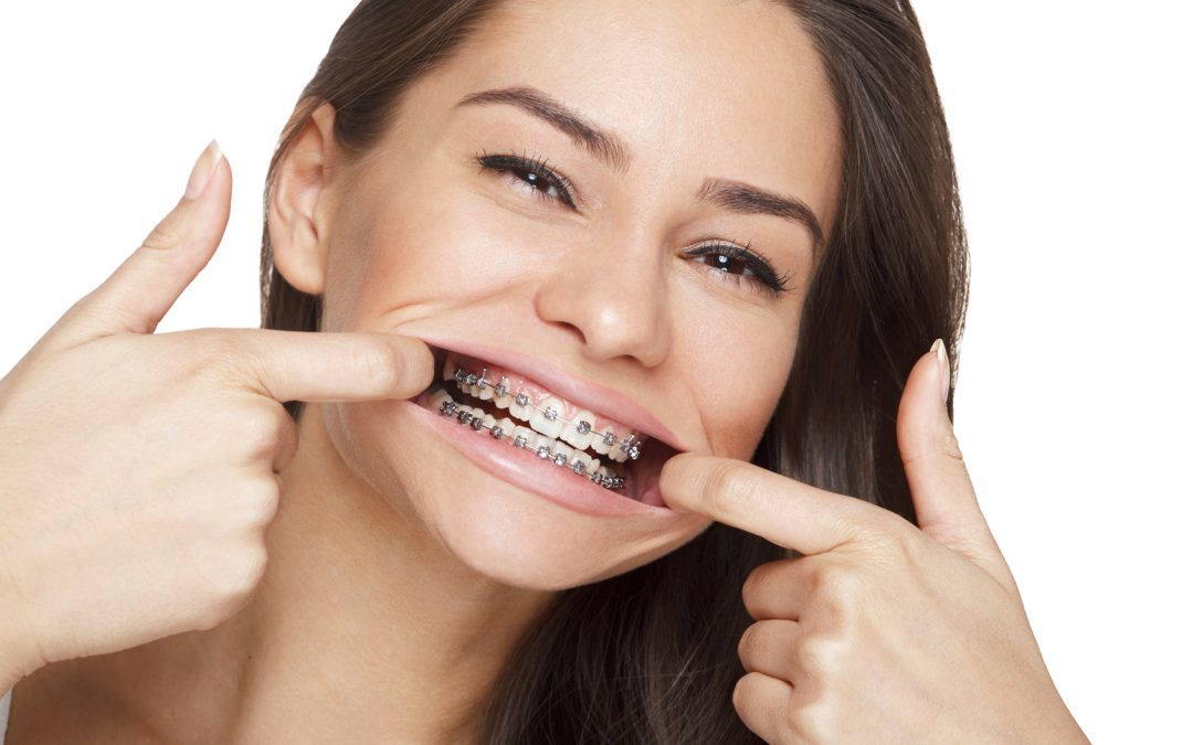 adult braces 1080x675 - چه موقع به فکر درمان ارتودنسی باشیم؟