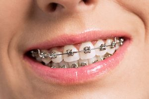 metal braces 1 300x200 - metal_braces