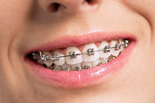 metal braces 1 - چه موقع به فکر درمان ارتودنسی باشیم؟