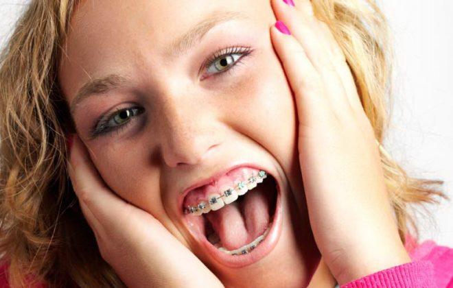 ortodoncia3 1 660x420 - درد در درمان ارتودنسی