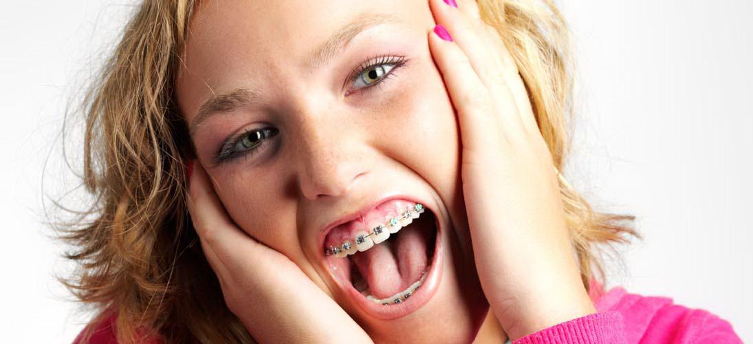 ortodoncia3 1 - درد در درمان ارتودنسی