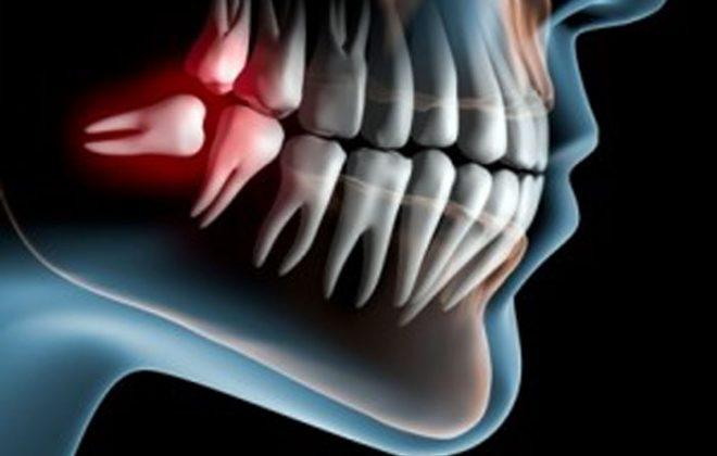 wisdom 1 660x420 - دندانهای عقل، ارتودنتیست و دندانپزشک