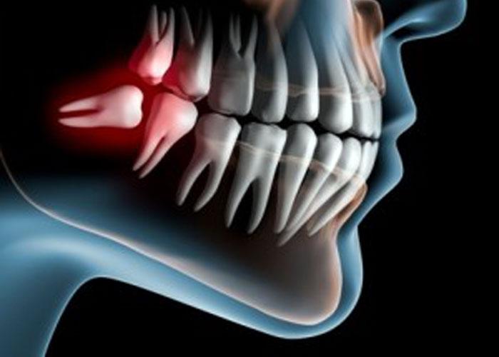 wisdom 1 - دندانهای عقل، ارتودنتیست و دندانپزشک