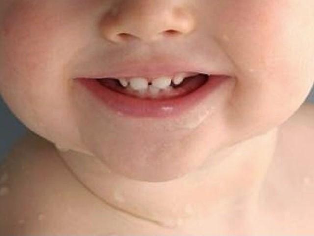 1 10 - مراحل رشد دندان شیری و دائمی در کودکان