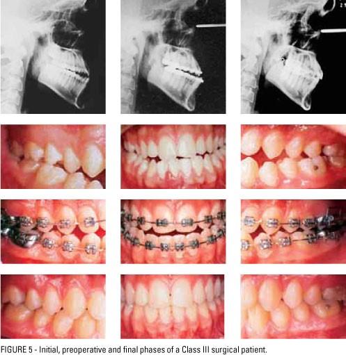 1 9 - جراحی فک و ارتودنسی