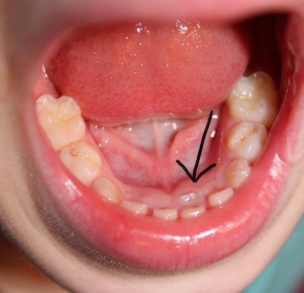2 12 - دندان های کوسه ای