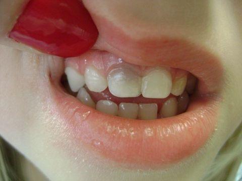 2 14 - تغییر رنگ دندان کودکان در نتیجه ضربه به دندان