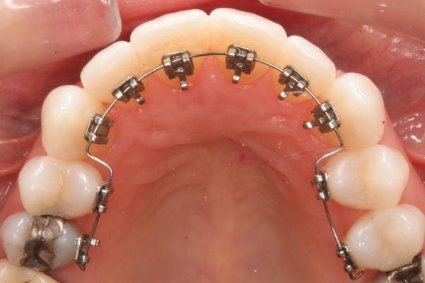 2 3 1 - ارتودنسی لینگوال (پشت دندانی)