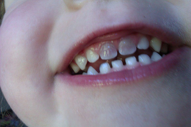 3 13 - تغییر رنگ دندان کودکان در نتیجه ضربه به دندان