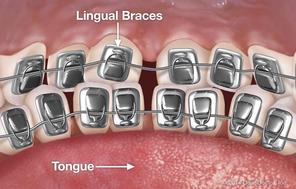 3 8 - ارتودنسی لینگوال (پشت دندانی)