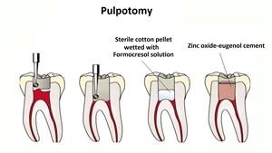 4 10 - درمان ریشه دندان شیری کودکان