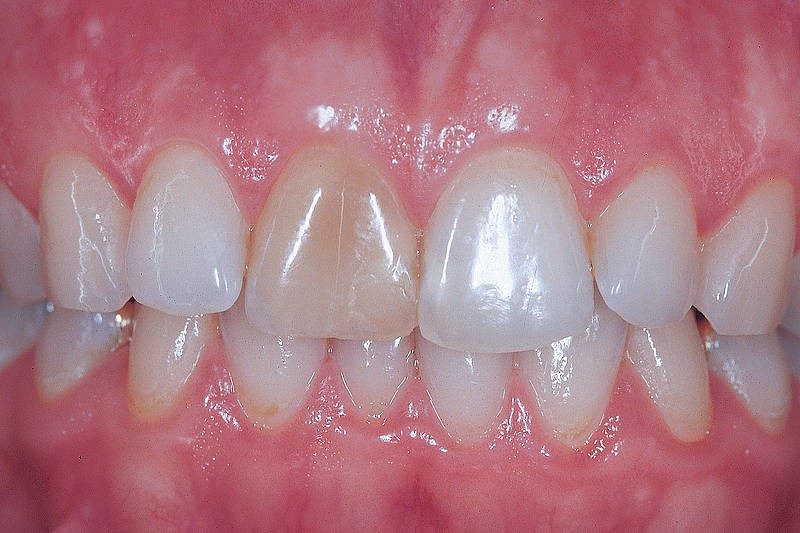 4 11 - تغییر رنگ دندان کودکان در نتیجه ضربه به دندان