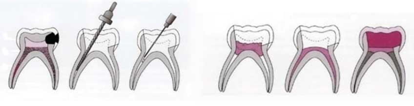 5 9 - درمان ریشه دندان شیری کودکان