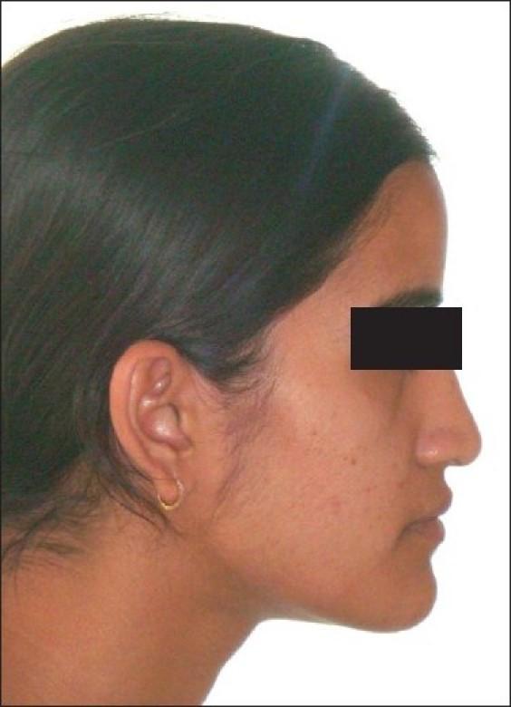 8 4 - جراحی فک و ارتودنسی