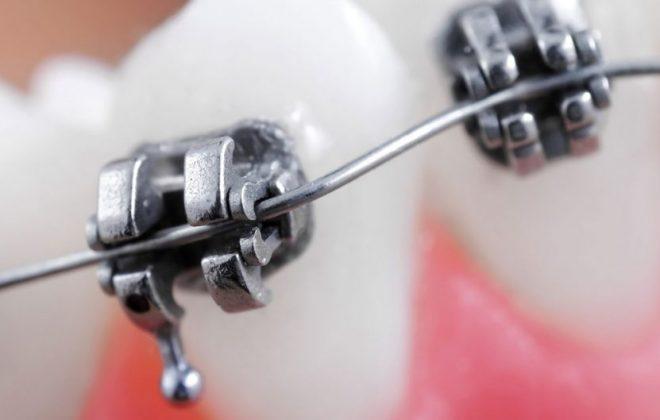 Orthodontic Emergency Care for Braces 2 1024x529 660x420 - مواجهه با اورژانس های ارتودنسی