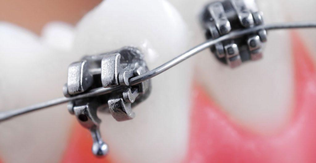 Orthodontic Emergency Care for Braces 2 1024x529 - مواجهه با اورژانس های ارتودنسی