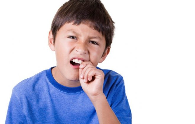 1 10 660x420 - حوادث دندانی در کودکان
