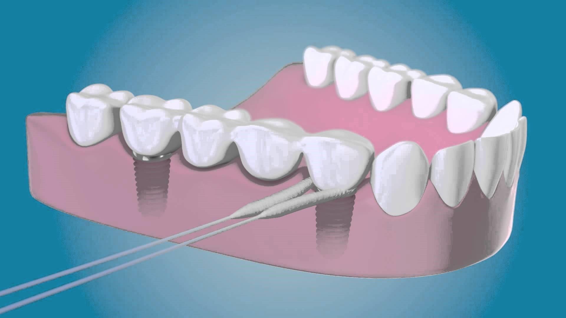 2 7 - نخ دندان و مسواک های بین دندانی ارتودنسی