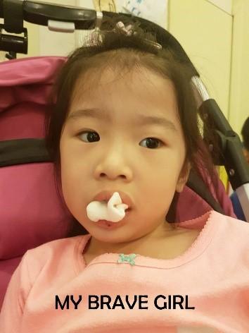 3 10 - کشیدن دندان در کودکان