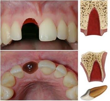 3 9 - حوادث دندانی در کودکان