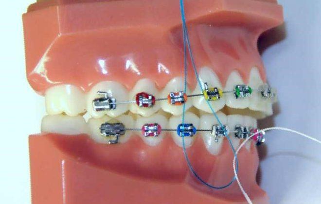 4 2 1 660x420 - نخ دندان و مسواک های بین دندانی ارتودنسی