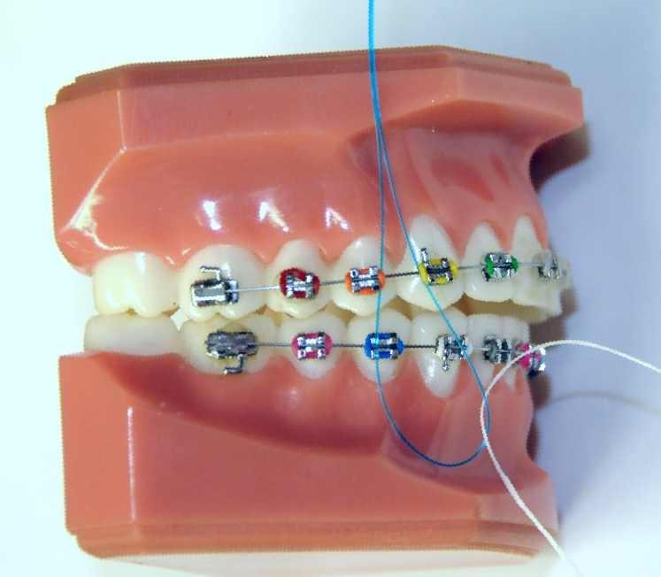 4 2 1 - نخ دندان و مسواک های بین دندانی ارتودنسی