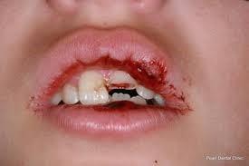 4 7 - حوادث دندانی در کودکان