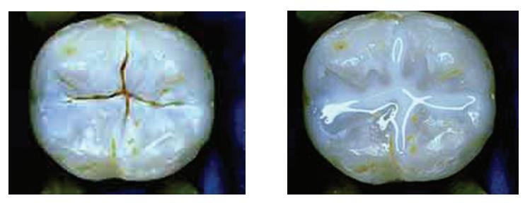5 1 - فیشور سیلانت دندان شیری