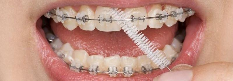 6 5 - نخ دندان و مسواک های بین دندانی ارتودنسی