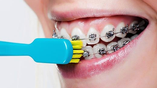 The Importance of Good Oral Hygiene During Orthodontic Treatment - بهداشت در درمان ارتودنسی ( قسمت اول )