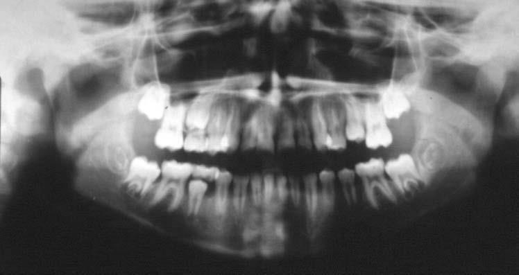 0 2 - تحلیل ریشه دندان در ارتودنسی
