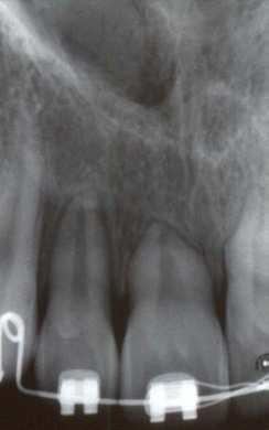 1 2 - تحلیل ریشه دندان در ارتودنسی