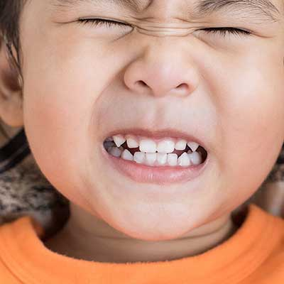 1 8 - دندان قروچه یا براکسیسم در کودکان
