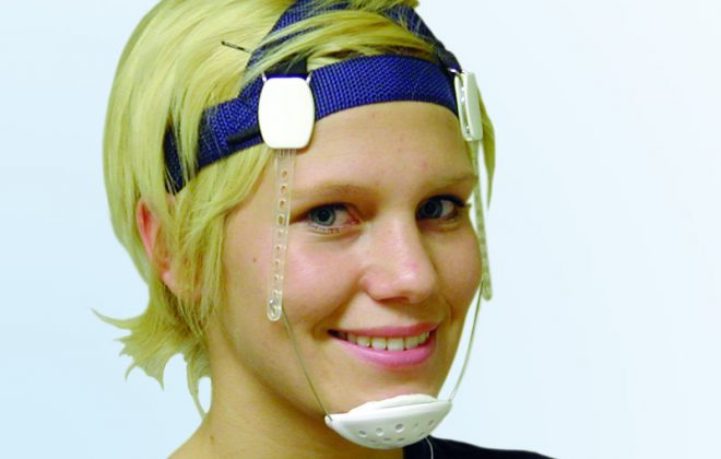vp 01 660x420 - چانه بند (Chin cup) در درمان ارتودنسی