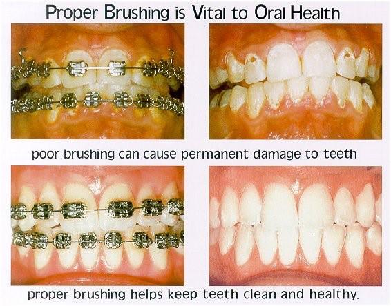 0 3 - نقش دهانشویه ها در درمان ارتودنسی