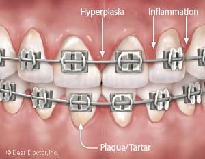 1 2 - نقش دهانشویه ها در درمان ارتودنسی
