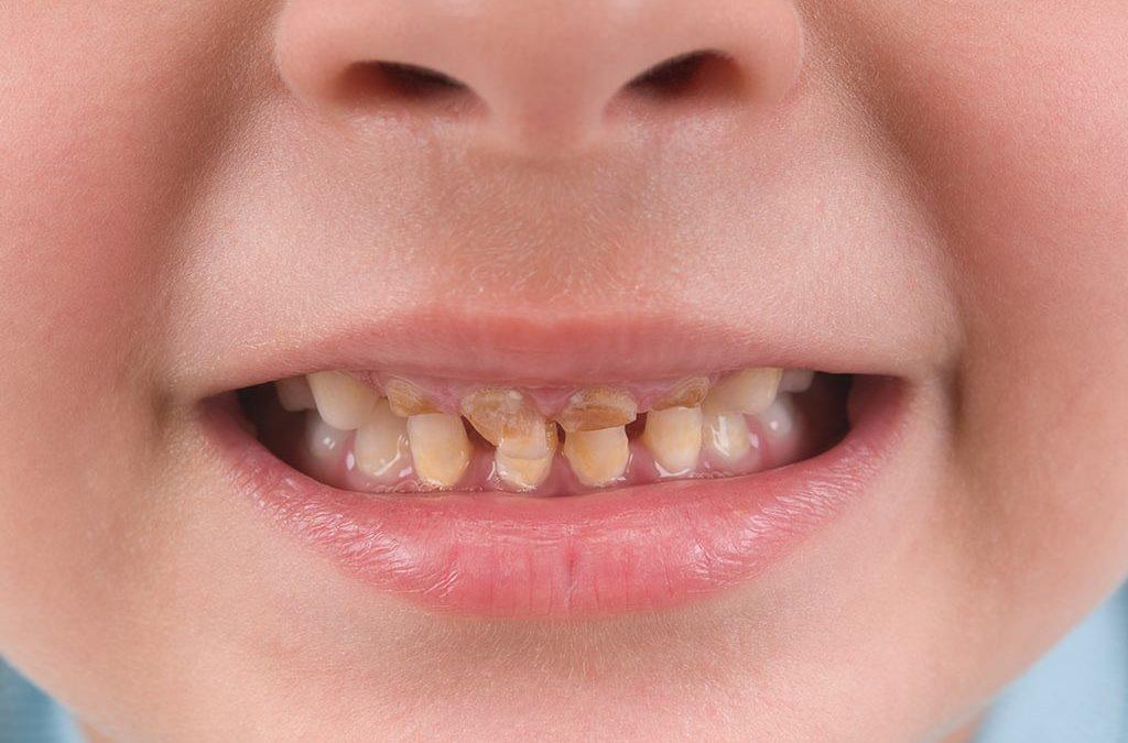 11 1024x675 - آیا قطره آهن موجب ایجاد لکه روی دندان کودک می شود؟