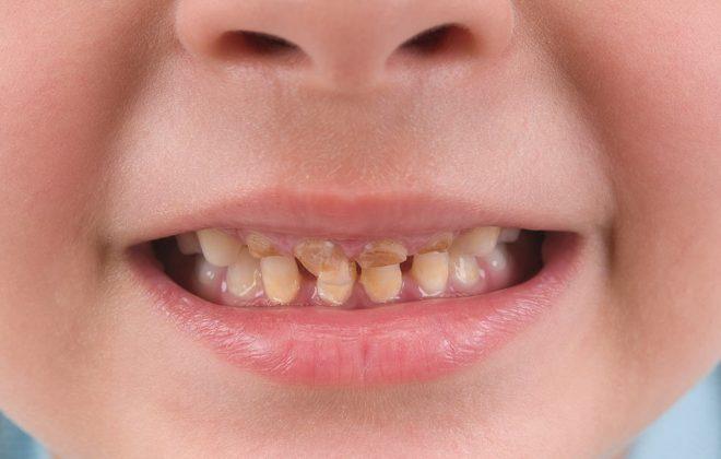 11 660x420 - آیا قطره آهن موجب ایجاد لکه روی دندان کودک می شود؟