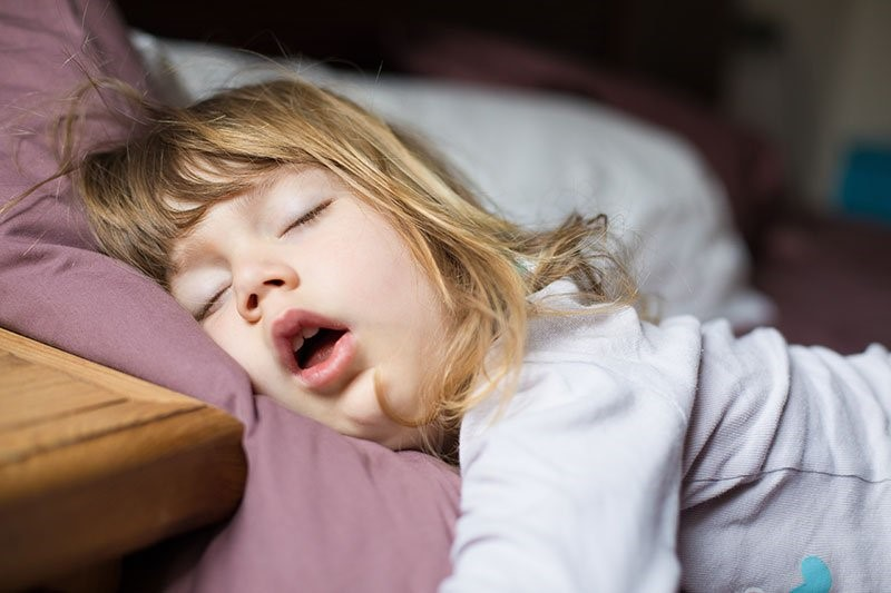2 3 - تنفس دهانی در کودکان